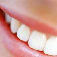 Incapacidade intelectual x cárie dentária em indivíduos com paralisia cerebral. Veja resposta em uma das nossas recentes publicações
