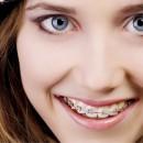 Ortodontia preventiva e interceptativa: manejo de maloclusões em crianças pré-escolares e escolares
